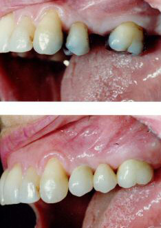 Dental bridges.